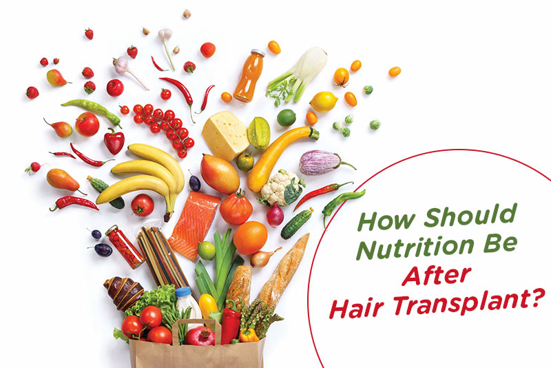 How should be nutrition after hair transplant