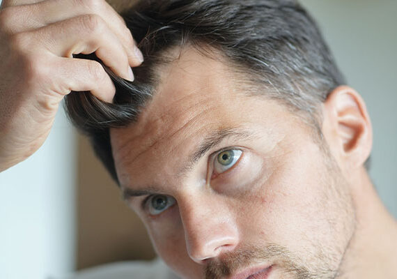 what-is-hair-loss-causes-treatments